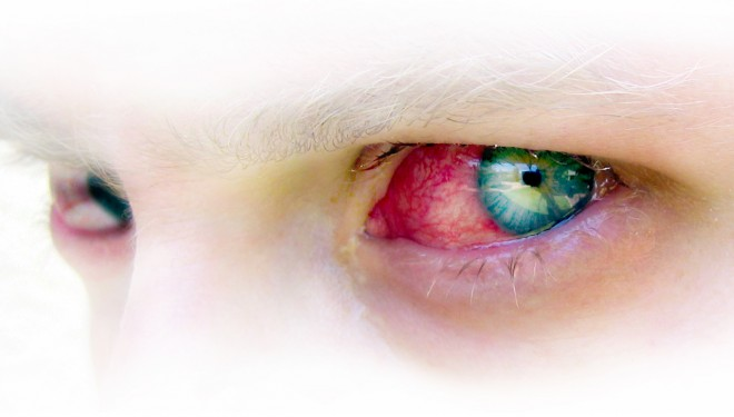 Conjuntivitis primaveral: viento y calor en los ojos