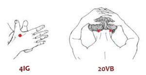 Puntos de acupuntura: 4IG y 20VB