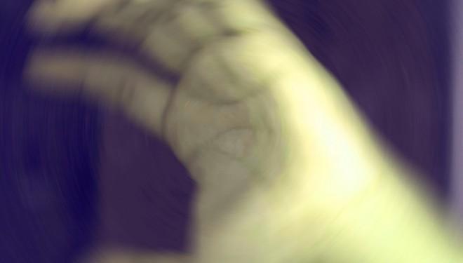Artritis Reumatoide en las manos ¿qué puede hacer la MTC?
