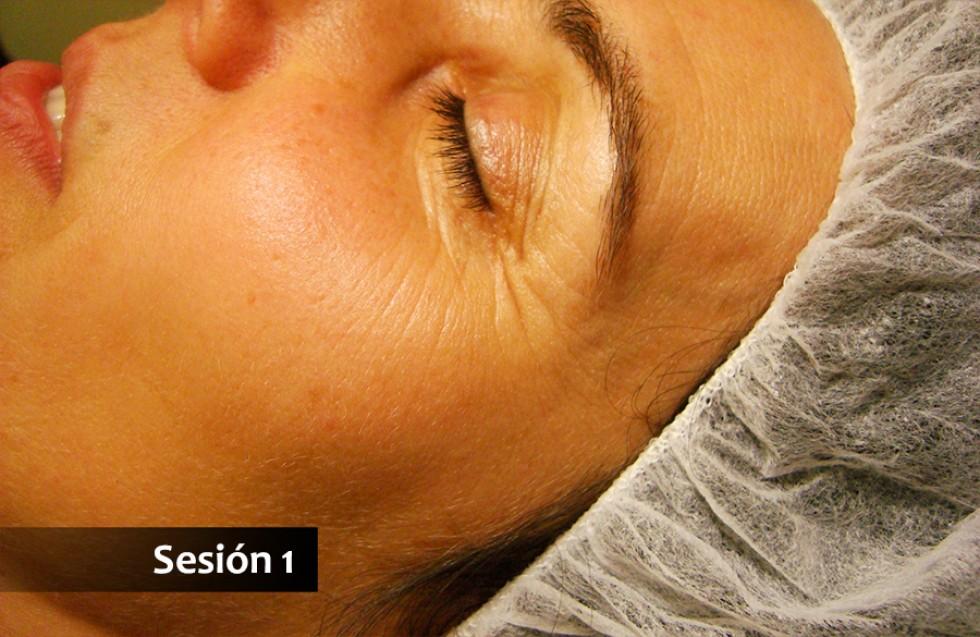 Acupuntura y masaje tuina: lifting facial