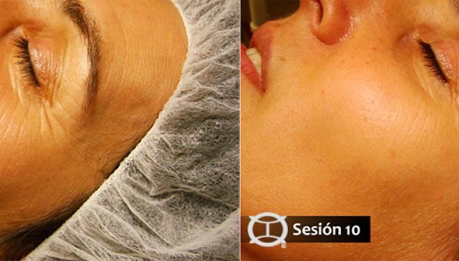 Rejuvenecimiento facial con Medicina Tradicional China (MTC)