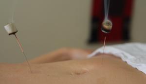 Moxa y acupuntura - Tratamiento enferemedad inflamatoria intestinal con Medicina Tradicional China