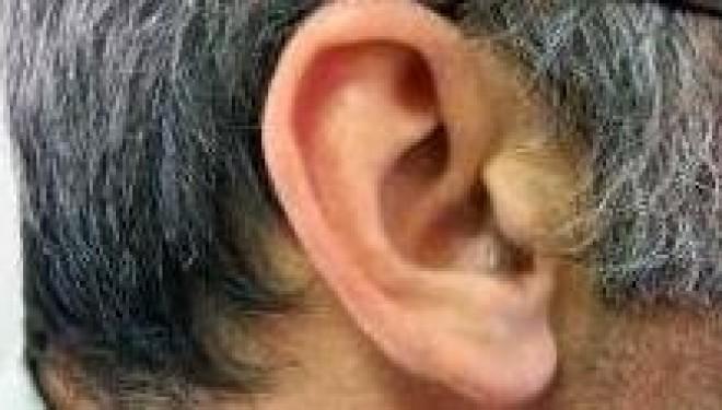 ¿Qué es la auriculoterapia?