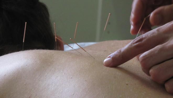 Descubre los 7 efectos terapeúticos menos agradables de la acupuntura
