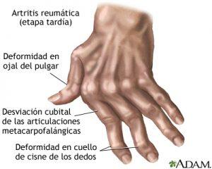 artritis-reumatoide-medline