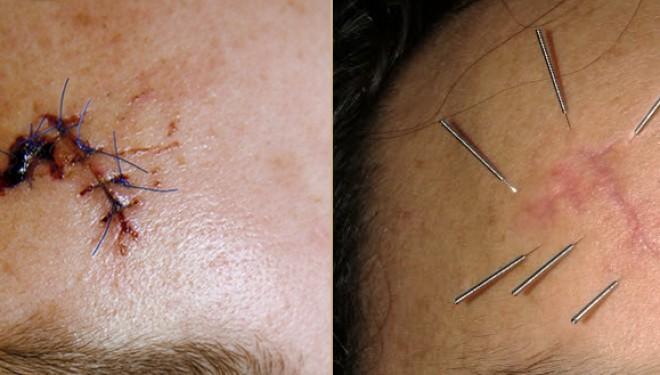 ¿Tienes alguna cicatriz que no te guste o te cause molestias?