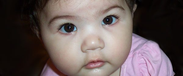 denticion infantil - tratamiento