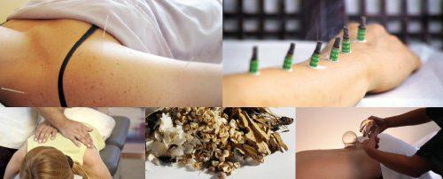 Tecnicas de medicina tradicional china | tecniques de medicina tradicional xinesa